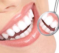 Blanchiment des dents à l'Instant Spa